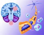 1 27 Corbis-42-21091552 2. болезни, рассеянного склероза, сетчатки
