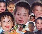 1 14 47 daun 2. синдром дауна