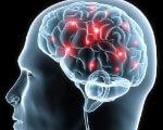 1 11 7 parkinson. синдрому паркінсонізму, хвороба паркінсона