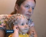 Як раніше розпізнати аутизм? (ВІДЕО) АУТИЗМ
