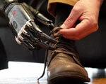 Воины АТО могут получать бионические протезы, не выезжая за границу (ВИДЕО)