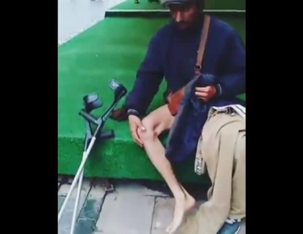 Інвалід без ноги виявився з ногою. Чернівчани за мить зцілили безногого (ВІДЕО). ноги