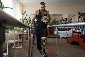 Кабмін скоротив використання протезів для інвалідів АТО з 4,5 до 3 років