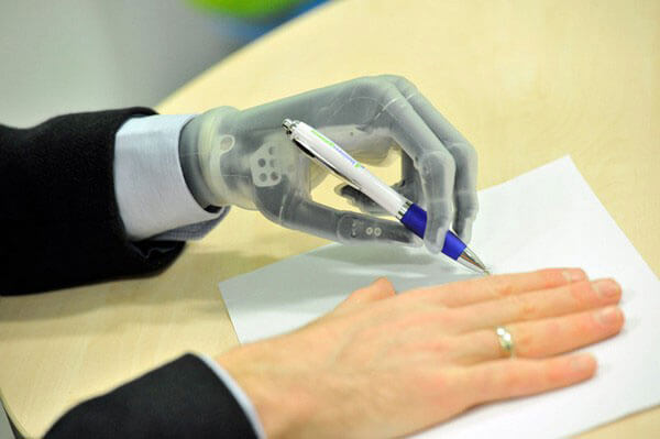 До кінця року 65% високотехнологічних протезів буде виготовлено в Україні