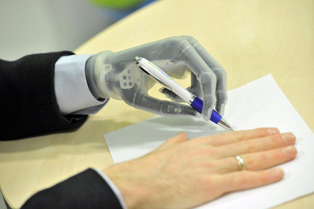 ДОРОЖНЯ КАРТА щодо протезування (ортезування) учасника АТО виробами підвищеної функціональності за новітніми технологіями та технологіями виготовлення, які відсутні в Україні