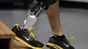 Хмельницьке ортопедичне підприємство пропонує якісне протезування. хмельницький, ортопедичне взуття, протез, протезне підприємство, протезування