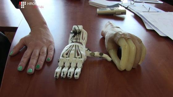 У Полтаві відкрили підприємство, яке друкує протези на ЗD принтері (ВІДЕО)