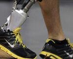 Травмованим бійцям АТО недоступні дорогі біопротези (ВІДЕО). биопротез, боєць ато, протезування, інвалід, інвалідність, person, footwear, indoor, shoe, feet. A person wearing a costume