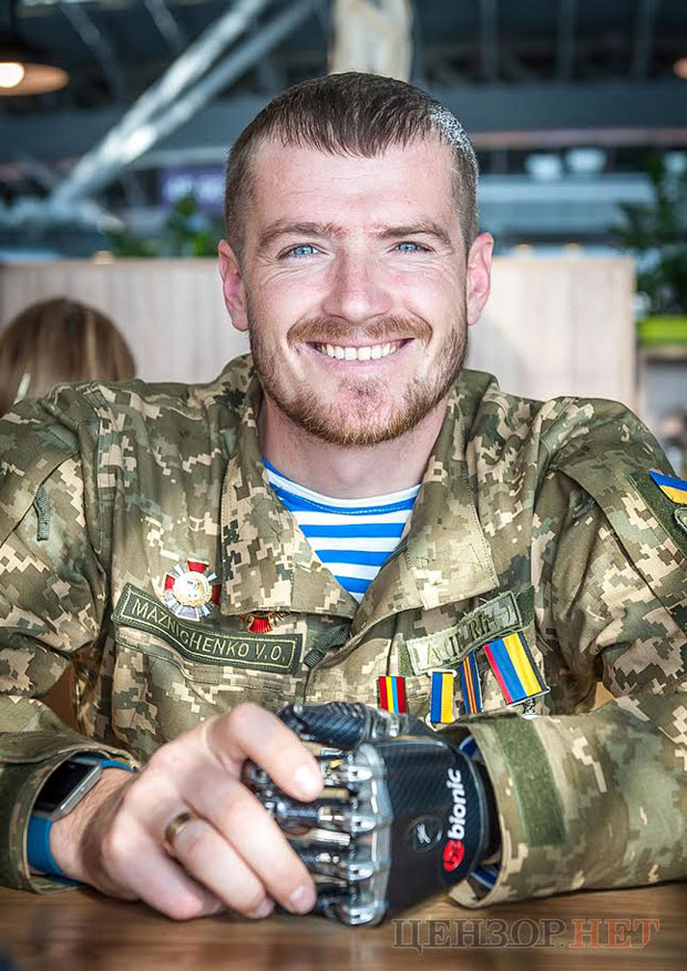 «Хочу, щоб люди розуміли – у нас війна» – герой АТО Вадим Мазніченко не ховає протези. вадим мазніченко, герой ато, поранення, протез, інвалідність