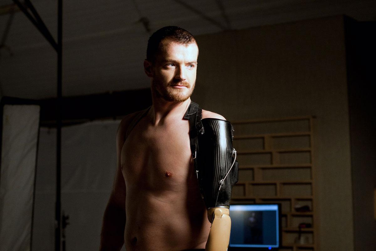«Хочу, щоб люди розуміли – у нас війна» – герой АТО Вадим Мазніченко не ховає протези (ФОТО, ВІДЕО)