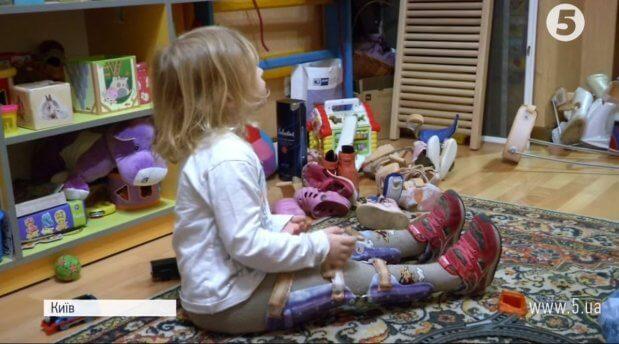 """""""Де гроші?"""": чому дітям в Україні відмовляються виготовляти ортези. діагноз, ортез, ортопедична майстерня, фінансування, інвалід"""