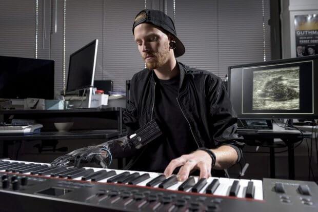 Новий протез для руки не завадить грати на піаніно. джейсон барнс, ампутация, музикант, протез, піаніно
