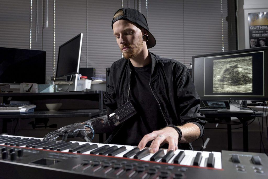 Новий протез для руки не завадить грати на піаніно