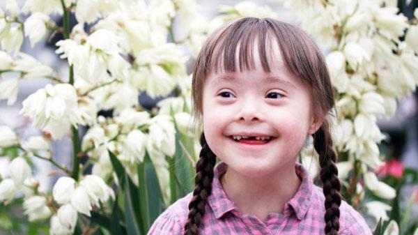 Керівниця центру «Промінчик» про те, як змінилося в Україні сприйняття людей з синдромом Дауна