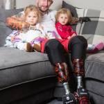Суперпапа: безрукий и безногий британец самостоятельно заботится о двухлетних дочерях (ФОТО)