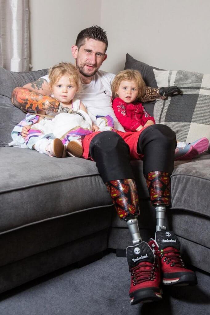 Суперпапа: безрукий и безногий британец самостоятельно заботится о двухлетних дочерях (ФОТО). джейми майнс, инвалид, несчастный случай, протез, строитель, indoor, toddler, person, human face, clothing, child, smile, baby, seat. A little boy is lying on a couch