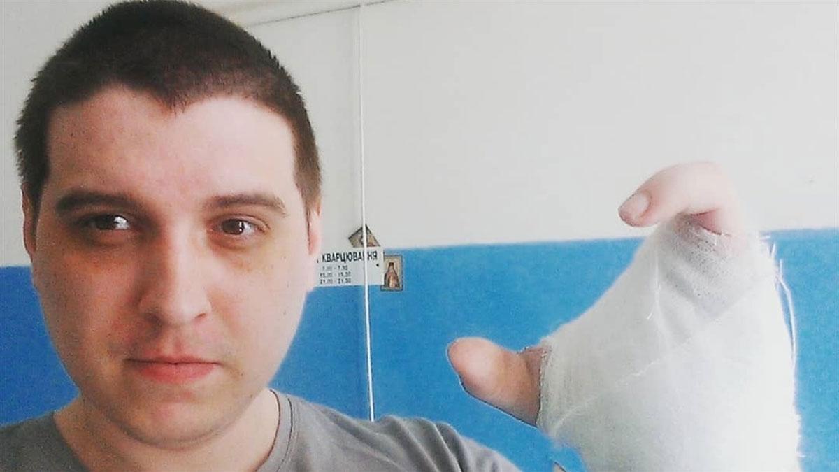 Почему переселенец из Донецка пришел на телевидение за новой рукой и что из этого получилось