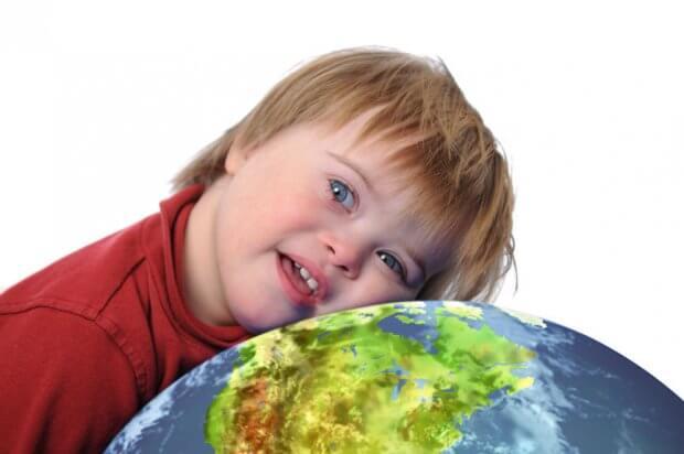 Люди із синдромом Дауна потребують особливого захисту з боку держави УПОВНОВАЖЕНИЙ ДИСКРИМІНАЦІЯ ЗАХВОРЮВАННЯ СИНДРОМ ДАУНА СУСПІЛЬСТВО