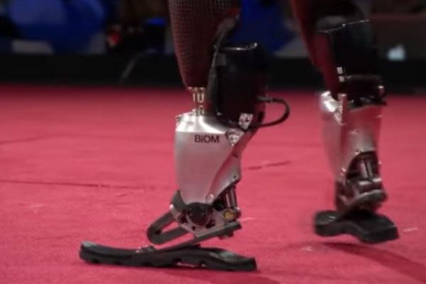 """""""Людину не зламати!"""" Історія створення протезів, що дозволяють бігати і танцювати (ВІДЕО)"""