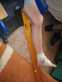 У Софіївській виправній колонії на Дніпропетровщині порушуються права засуджених з інвалідністю