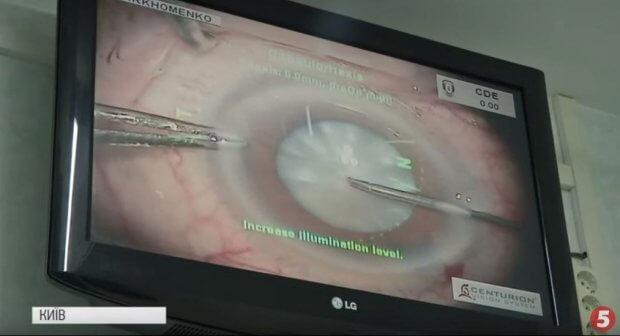 """""""100 очей"""": у Києві роблять безкоштовні операції тим, хто втратив зір на Донбасі. донбас, бойові дії, зір, операція, проєкт 100 очей"""
