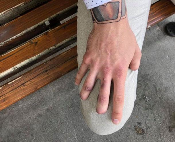 Життя з осколками під шкірою: в мережі розповіли зворушливу історію про бійця ЗСУ. боєць зсу, громадянство, осколок, поранений, протез