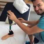Новый нейропротез ноги воспринимается центральной нервной системой пользователя в качестве продолжения конечности (ФОТО, ВИДЕО)