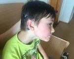 Державний Центр реабілітації дітей з порушенням слуху та мови: Перейняли теорію, запроваджують практику. івано-франківськ, кохлеарний імплант, лікування, порушення слуху та мови, інвалідність