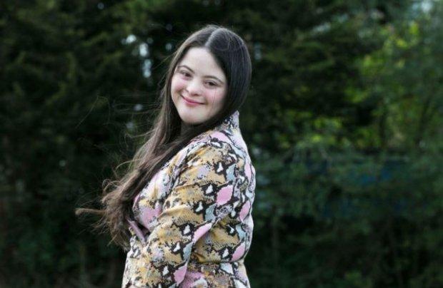 Дівчина з синдромом Дауна, яку медики списали з рахунків, стала моделлю Gucci. gucci, еллі голдштейн, модель, синдром дауна, фотосесія