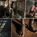 У світі сотні тисяч людей з психічними розладами заковані у кайдани – правозахисники