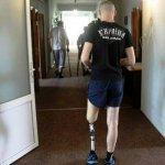 На Львівському протезному заводі ветеранів-інвалідів повертають до повноцінного життя (ФОТО, ВІДЕО)