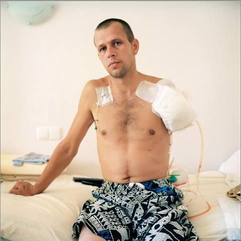 Життя після війни: «Або живеш без руки, або помираєш із двома». ато, сергій гордійчук, ампутация, поранення, інвалідність