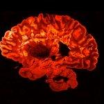 Хвороба тисячі облич. Як живуть люди з розсіяним склерозом — і як прийняти цей діагноз