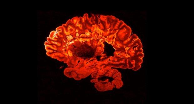 Хвороба тисячі облич. Як живуть люди з розсіяним склерозом — і як прийняти цей діагноз. рс, діагноз, захворювання, хвороба, інвалідність